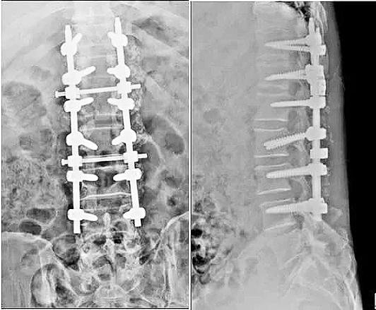 男子腰痛三年,发现神经鞘瘤