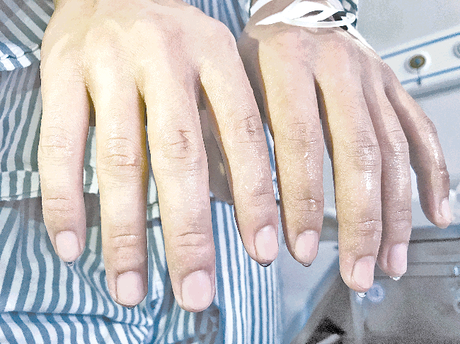 双手汗如雨滴,免费手术治愈